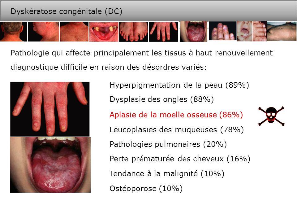 Petite stature /retard de développementMicrocéphalie Épiphora Hypoplasie cérébellaireNécrose avasculaire des articulations Problèmes gastroentériqueDéficiences immunologique Perte prématurée des dents Autres désordres: autres… Des mutations dans 6 gènes sont responsables de la moitié des cas répertoriés au DCR (Londres).