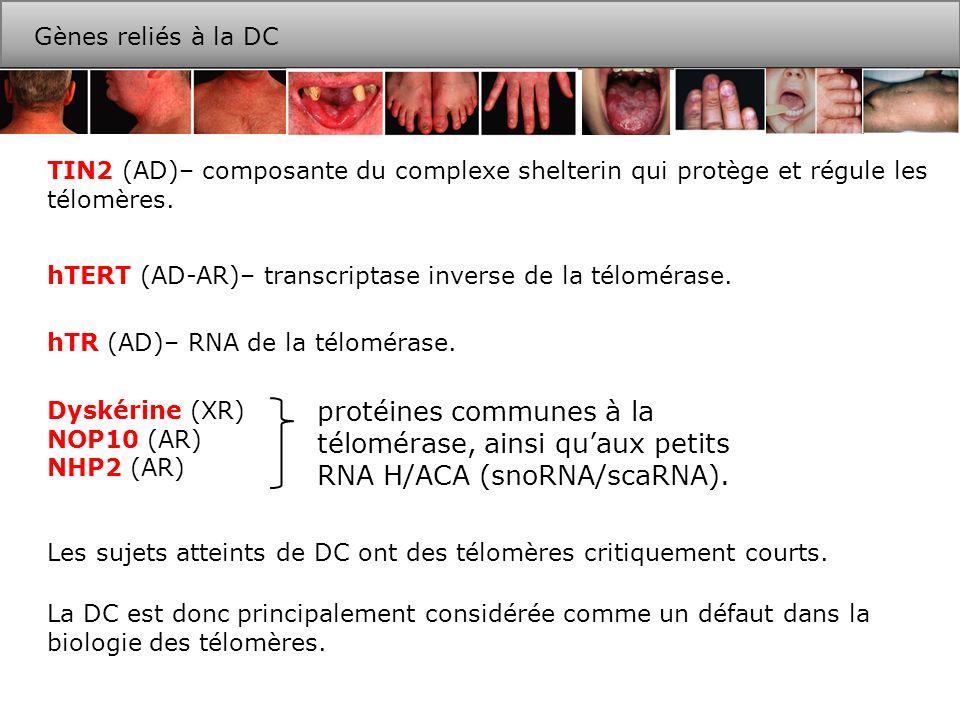 [TTAGGG]n [AATCCC]n 2-30 kpb 50-300 b 3 5 [TTAGGG]n [AATCCC]n T-loop D-loop 5 3 Problème de réplication des extrémités chromosomiques fourche de réplication 3 5 synthèse du brin avancé 3 5 Synthèse du brin retardé 3 5 5 3 3 5 Extension et dégradation des amorces Télomères et problème de réplication DNA télomérique