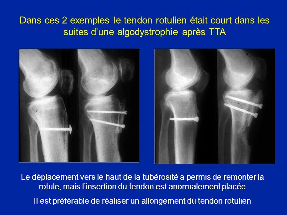 Dans ces 2 exemples le tendon rotulien était court dans les suites dune algodystrophie après TTA Le déplacement vers le haut de la tubérosité a permis de remonter la rotule, mais linsertion du tendon est anormalement placée Il est préférable de réaliser un allongement du tendon rotulien