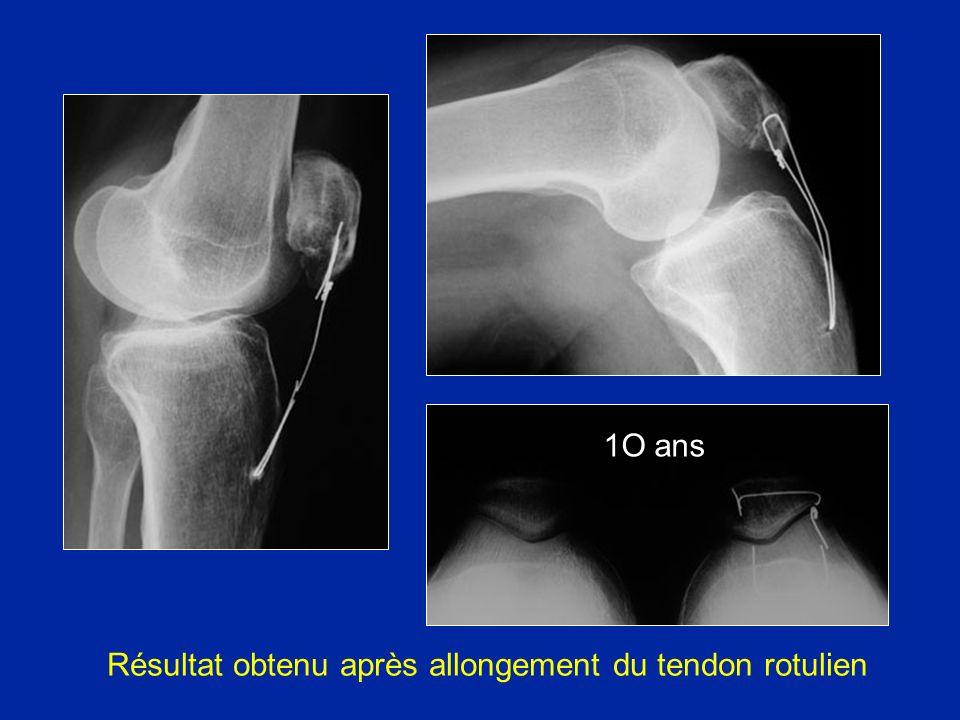 Résultat obtenu après allongement du tendon rotulien 1O ans