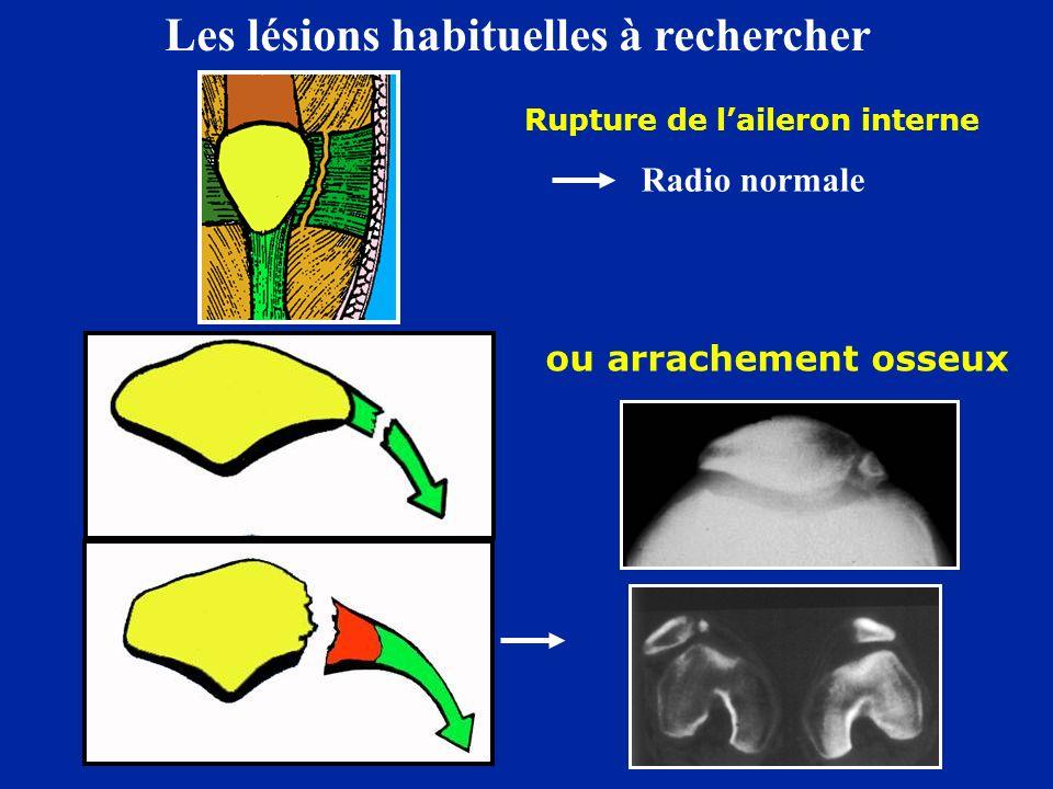 ou arrachement osseux Rupture de laileron interne Radio normale Les lésions habituelles à rechercher