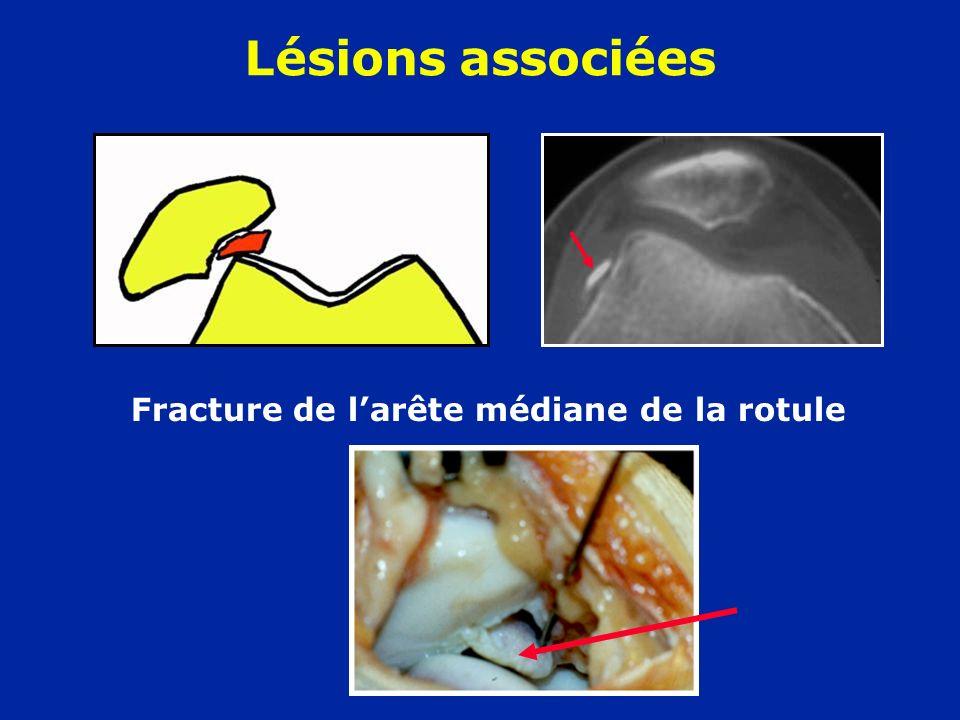 Fracture de larête médiane de la rotule Lésions associées