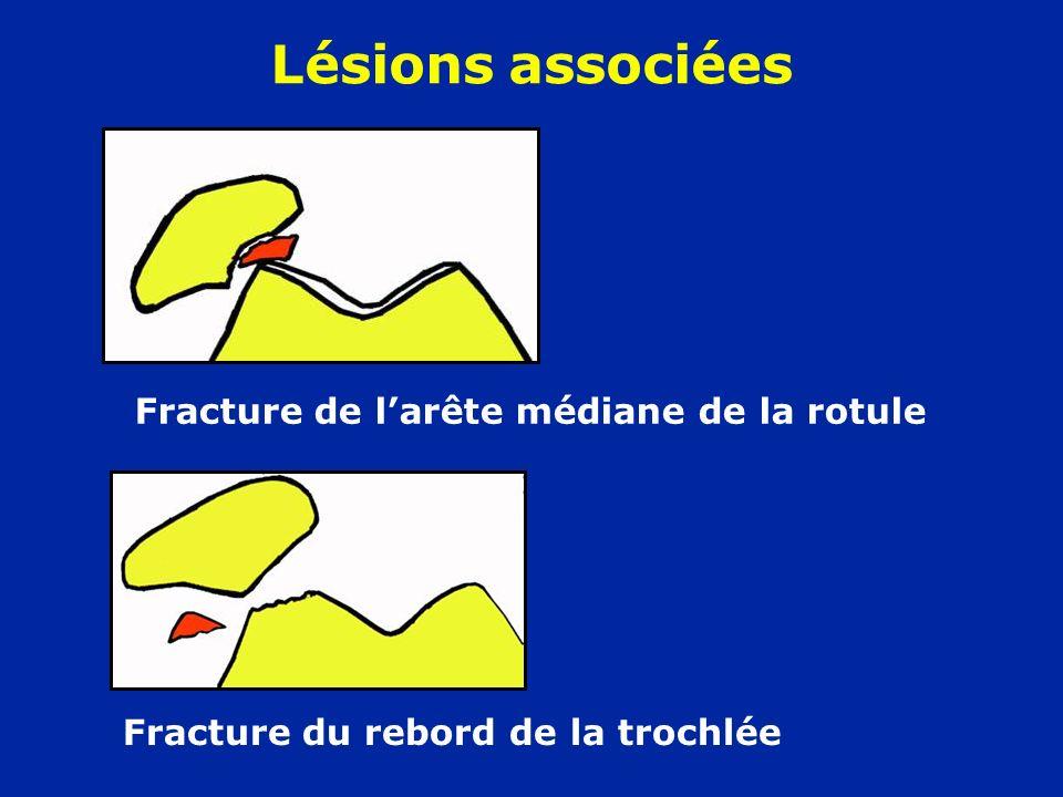Fracture de larête médiane de la rotule Lésions associées Fracture du rebord de la trochlée