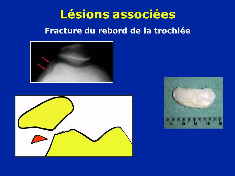 Fracture du rebord de la trochlée Lésions associées