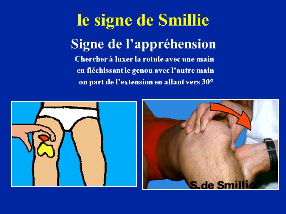 le signe de Smillie Signe de lappréhension Chercher à luxer la rotule avec une main en fléchissant le genou avec lautre main on part de lextension en allant vers 30°
