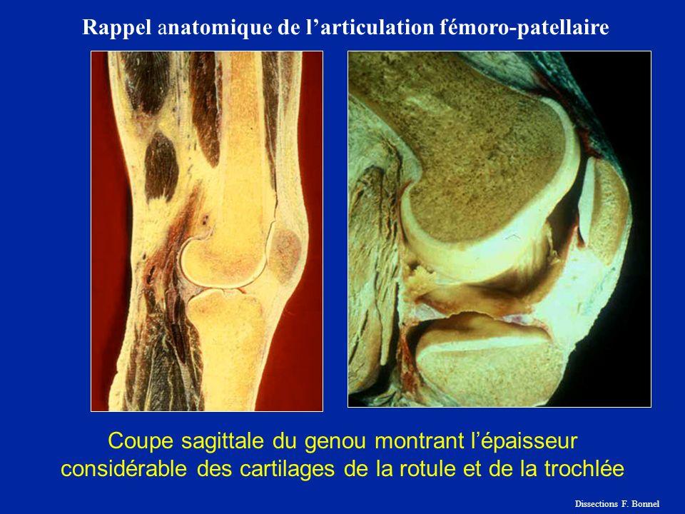 Coupe sagittale du genou montrant lépaisseur considérable des cartilages de la rotule et de la trochlée Rappel anatomique de larticulation fémoro-patellaire Dissections F.