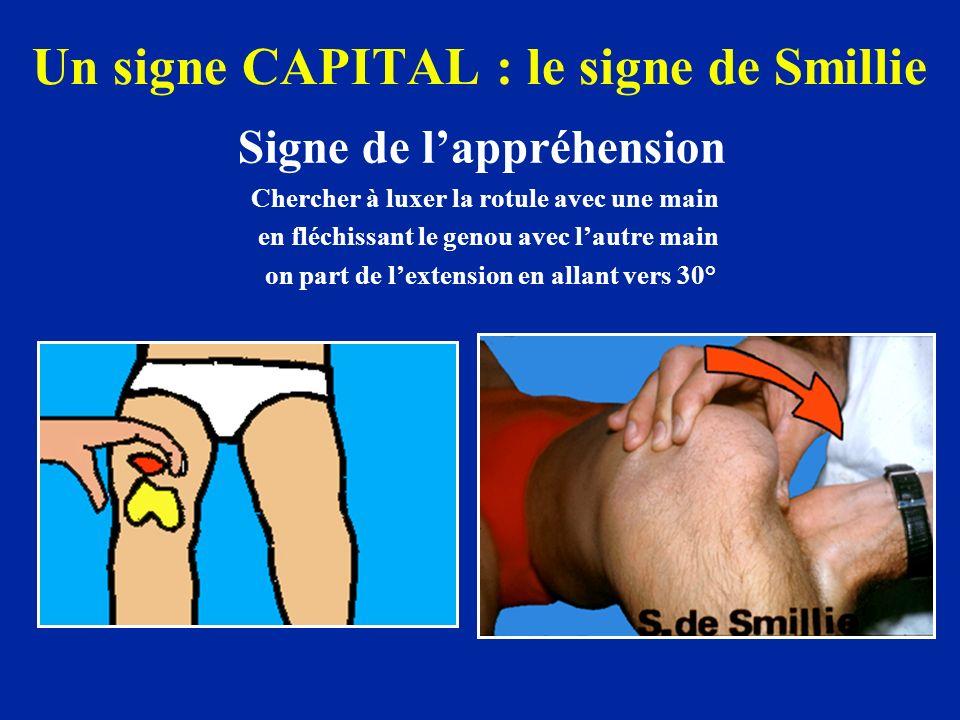 Un signe CAPITAL : le signe de Smillie Signe de lappréhension Chercher à luxer la rotule avec une main en fléchissant le genou avec lautre main on part de lextension en allant vers 30°