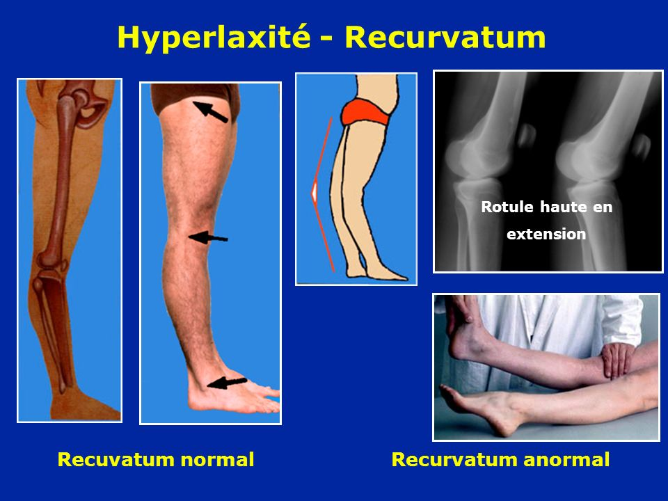 Hyperlaxité - Recurvatum Rotule haute en extension Recuvatum normal Recurvatum anormal