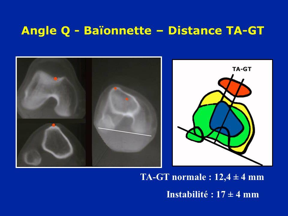 Angle Q - Baïonnette – Distance TA-GT TA-GT normale : 12,4 ± 4 mm Instabilité : 17 ± 4 mm