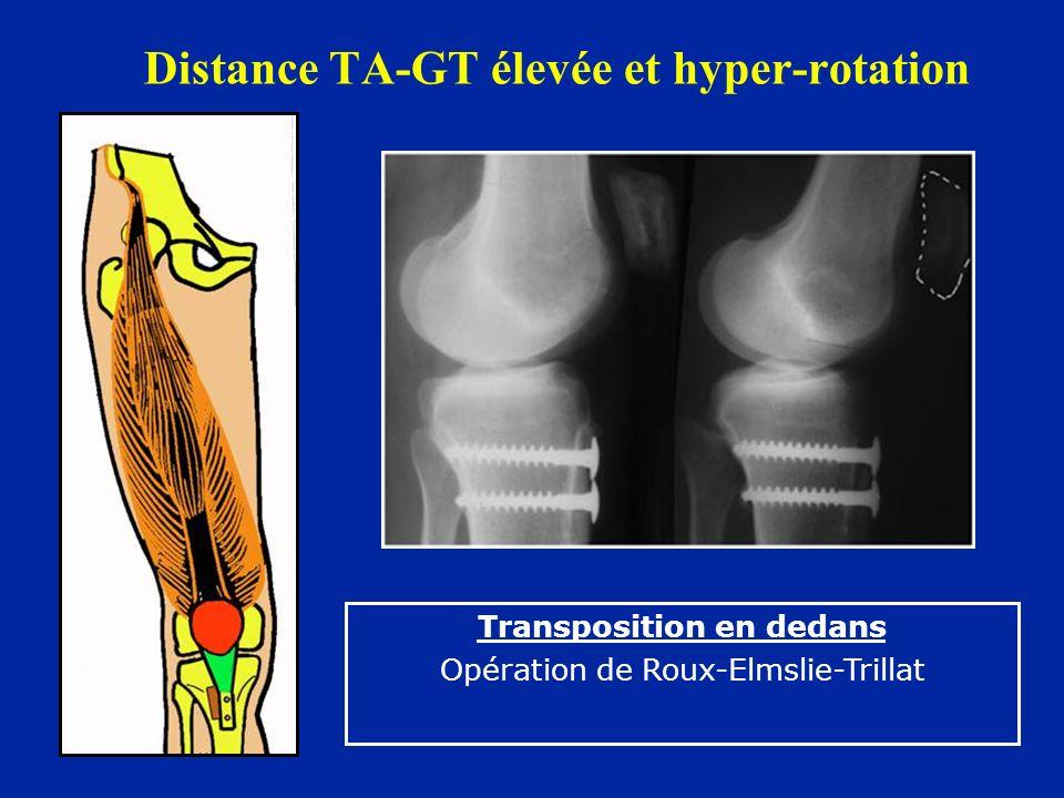 Distance TA-GT élevée et hyper-rotation Transposition en dedans Opération de Roux-Elmslie-Trillat