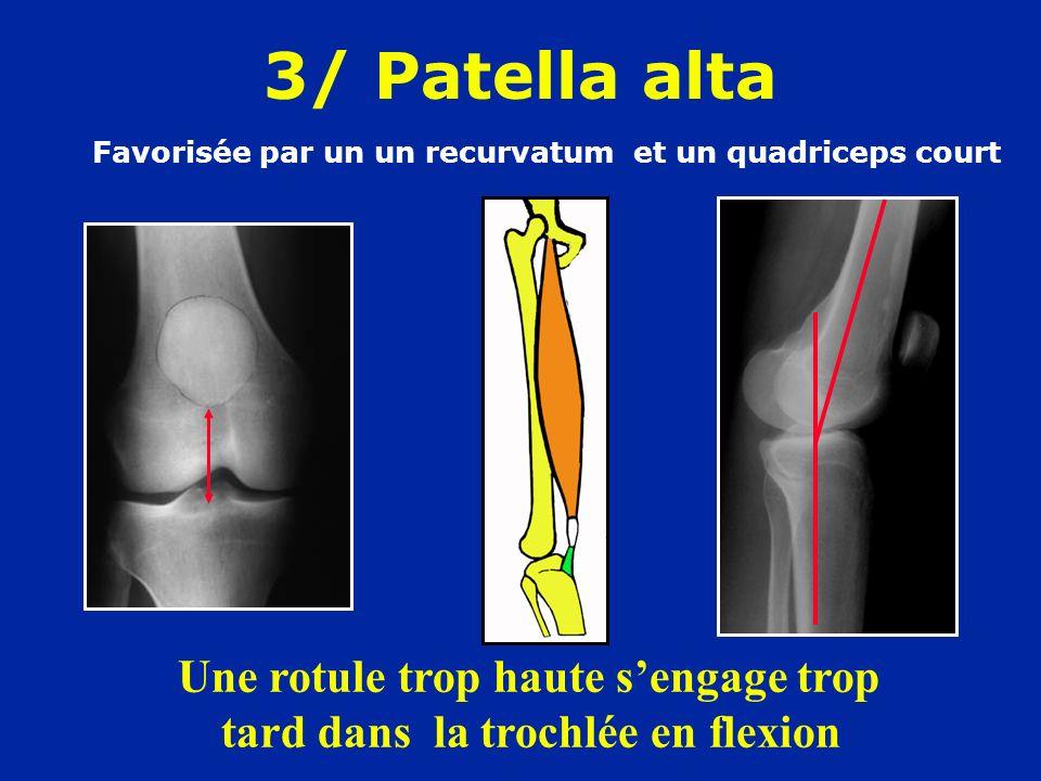 3/ Patella alta Favorisée par un un recurvatum et un quadriceps court Une rotule trop haute sengage trop tard dans la trochlée en flexion