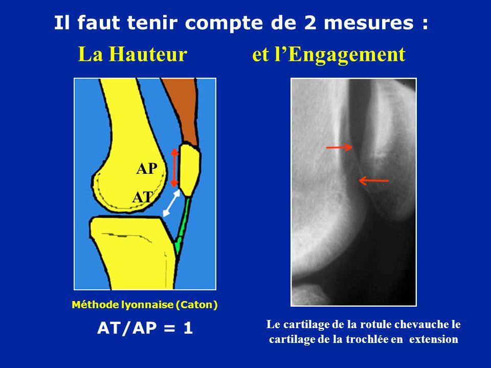 La Hauteur et lEngagement Méthode lyonnaise (Caton) AT/AP = 1 Il faut tenir compte de 2 mesures : AT AP Le cartilage de la rotule chevauche le cartilage de la trochlée en extension