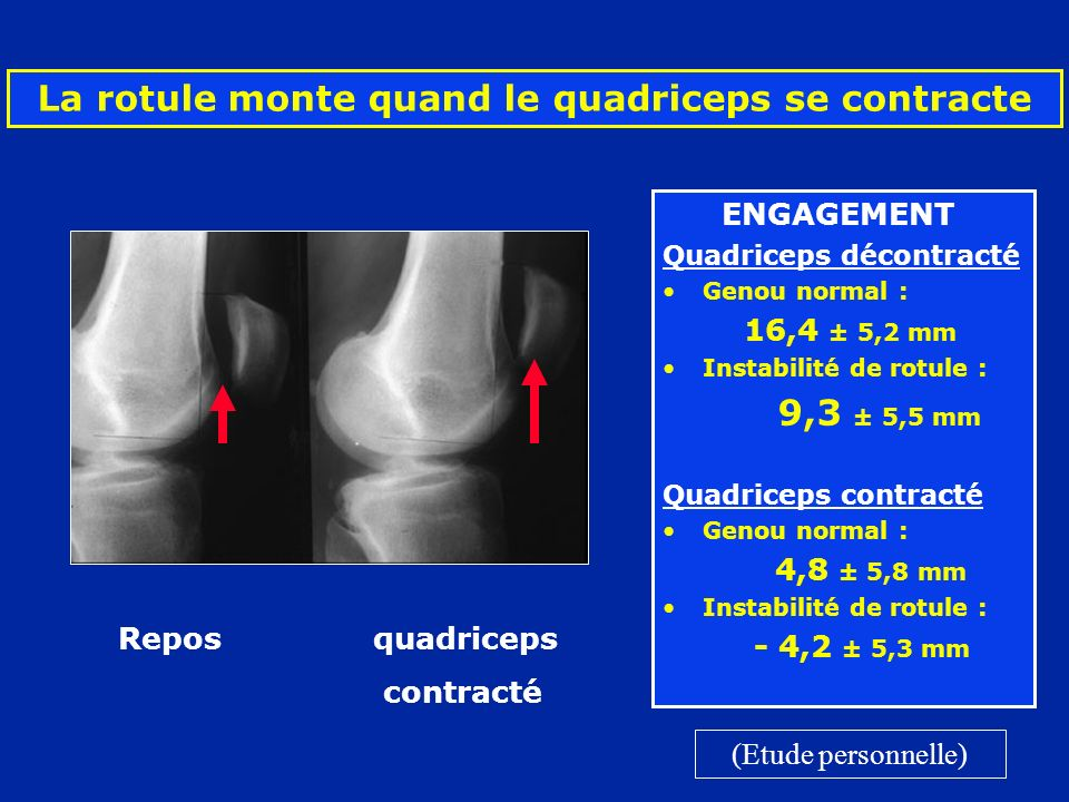 La rotule monte quand le quadriceps se contracte ENGAGEMENT Quadriceps décontracté Genou normal : 16,4 ± 5,2 mm Instabilité de rotule : 9,3 ± 5,5 mm Q