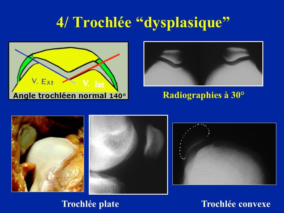 4/ Trochlée dysplasique Trochlée plate Trochlée convexe Angle trochléen normal 140° Radiographies à 30°
