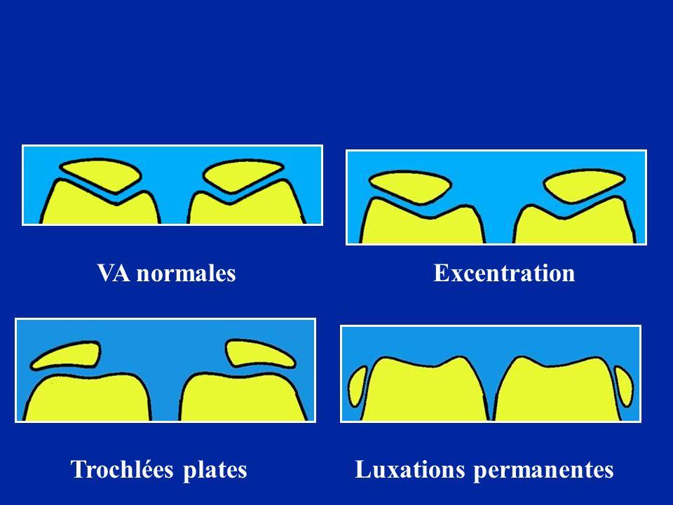 VA normalesExcentration Trochlées platesLuxations permanentes