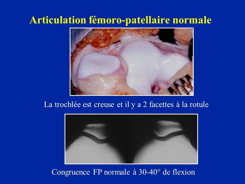 Articulation fémoro-patellaire normale Congruence FP normale à 30-40° de flexion La trochlée est creuse et il y a 2 facettes à la rotule
