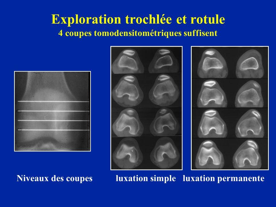 Exploration trochlée et rotule 4 coupes tomodensitométriques suffisent Niveaux des coupes luxation simple luxation permanente