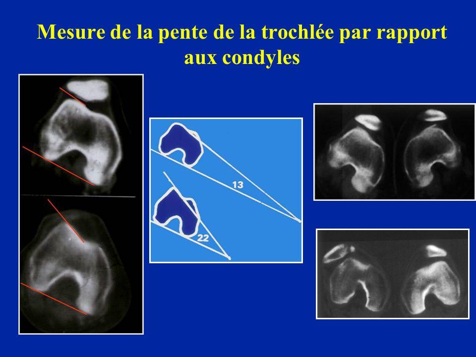 Mesure de la pente de la trochlée par rapport aux condyles