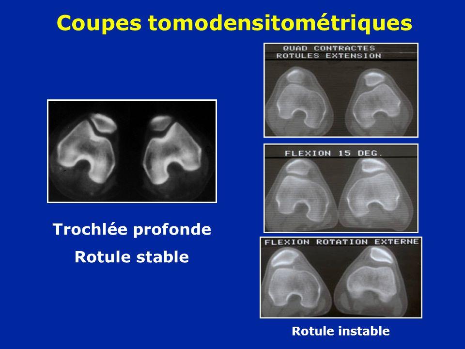Coupes tomodensitométriques Trochlée profonde Rotule stable Rotule instable