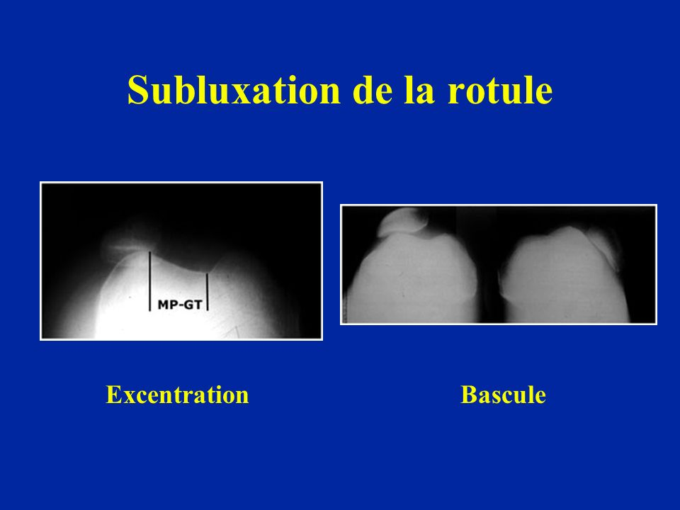Subluxation de la rotule ExcentrationBascule