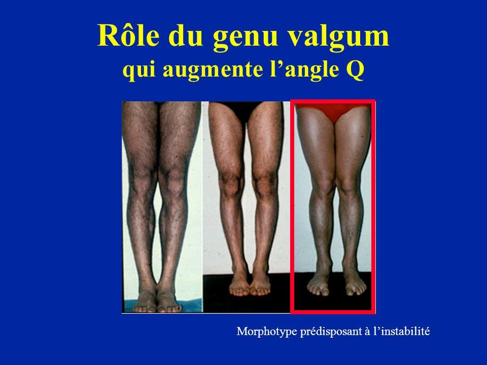 Rôle du genu valgum qui augmente langle Q Morphotype prédisposant à linstabilité