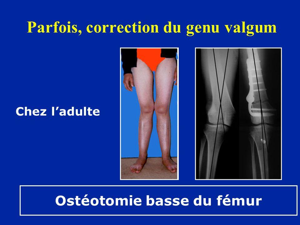Parfois, correction du genu valgum Chez ladulte Ostéotomie basse du fémur