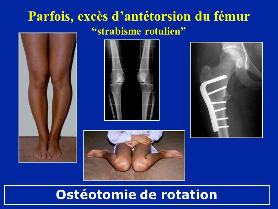 Parfois, excès dantétorsion du fémur strabisme rotulien Ostéotomie de rotation