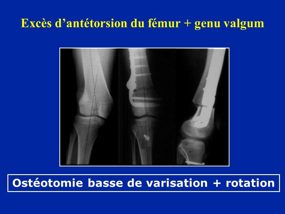Excès dantétorsion du fémur + genu valgum Ostéotomie basse de varisation + rotation
