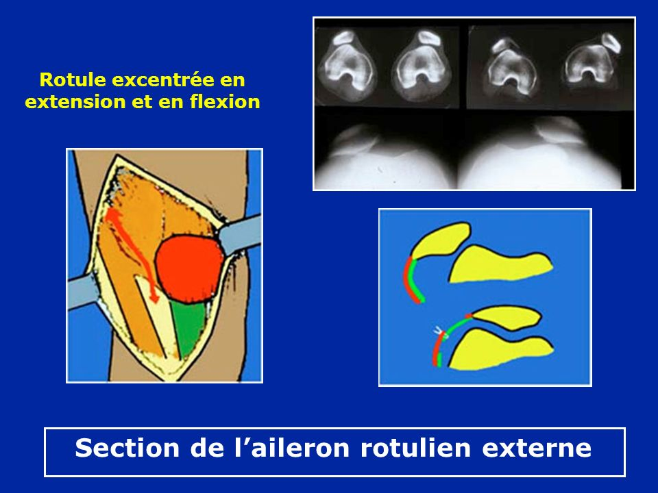 Section de laileron rotulien externe Rotule excentrée en extension et en flexion