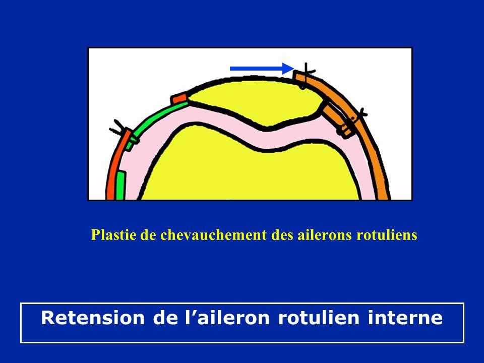 Retension de laileron rotulien interne Plastie de chevauchement des ailerons rotuliens