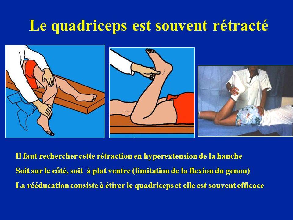 Le quadriceps est souvent rétracté Il faut rechercher cette rétraction en hyperextension de la hanche Soit sur le côté, soit à plat ventre (limitation de la flexion du genou) La rééducation consiste à étirer le quadriceps et elle est souvent efficace