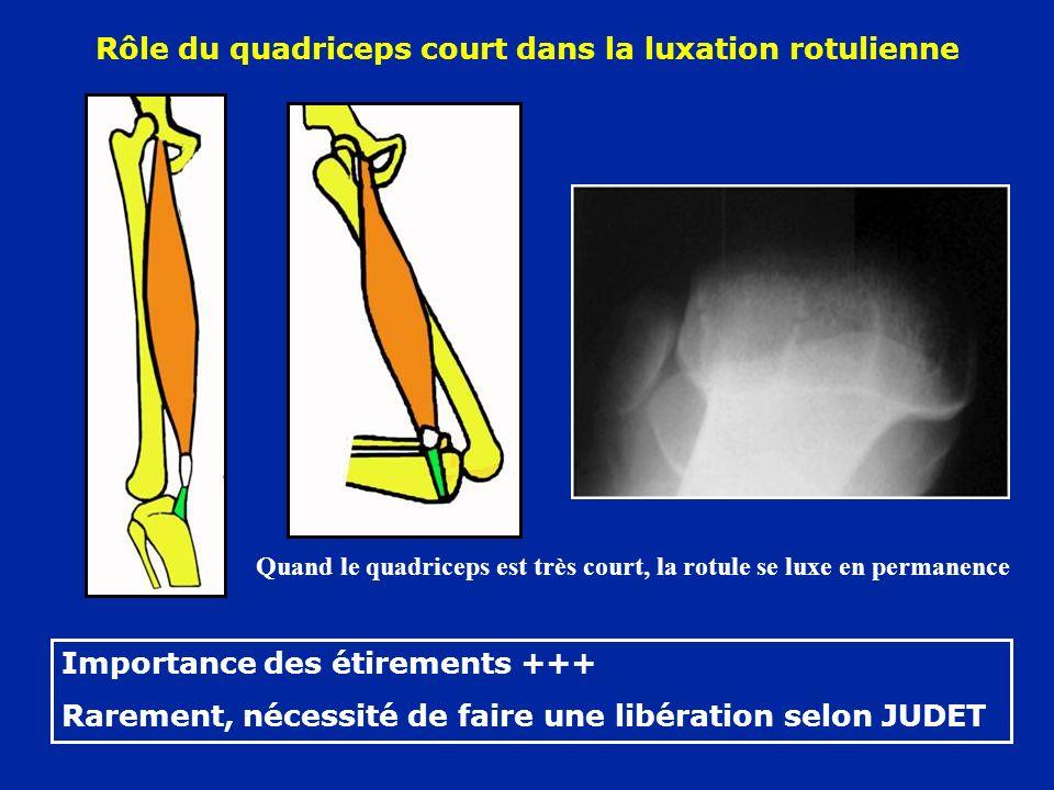 Rôle du quadriceps court dans la luxation rotulienne Importance des étirements +++ Rarement, nécessité de faire une libération selon JUDET Quand le qu