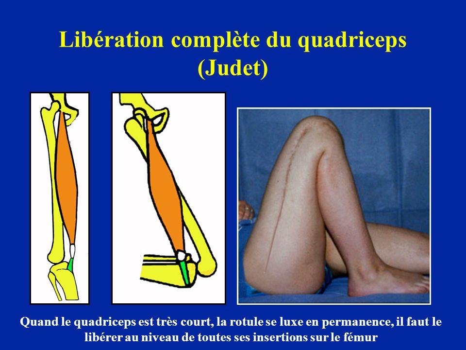 Libération complète du quadriceps (Judet) Quand le quadriceps est très court, la rotule se luxe en permanence, il faut le libérer au niveau de toutes