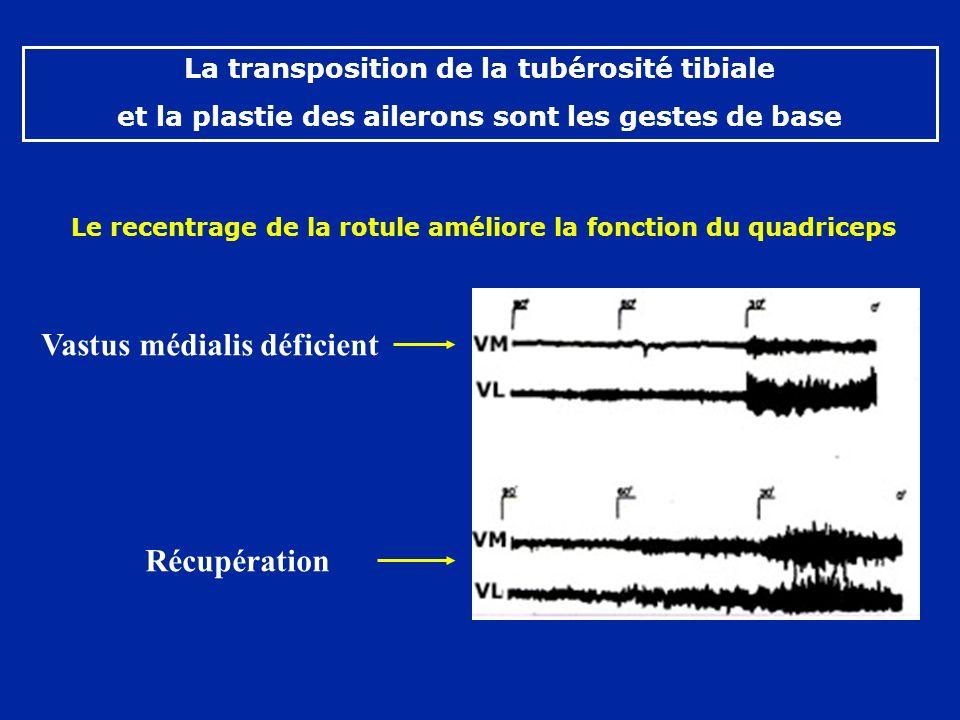 Le recentrage de la rotule améliore la fonction du quadriceps Récupération Vastus médialis déficient La transposition de la tubérosité tibiale et la plastie des ailerons sont les gestes de base