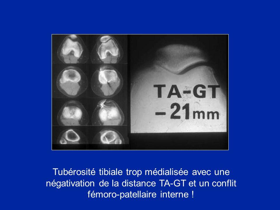 Tubérosité tibiale trop médialisée avec une négativation de la distance TA-GT et un conflit fémoro-patellaire interne !