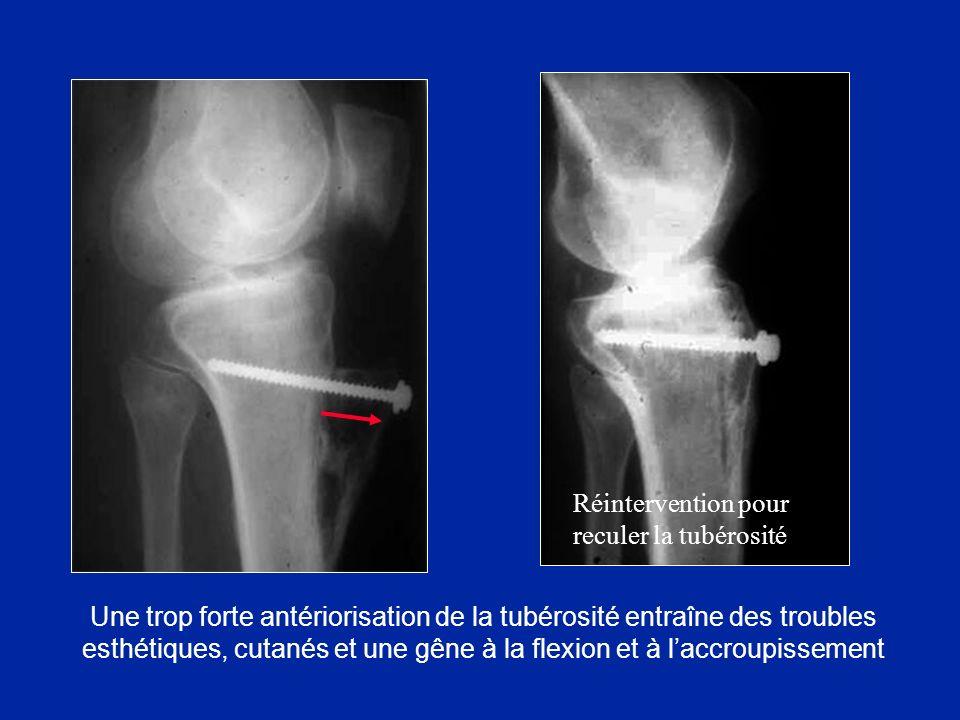 Une trop forte antériorisation de la tubérosité entraîne des troubles esthétiques, cutanés et une gêne à la flexion et à laccroupissement Réintervention pour reculer la tubérosité