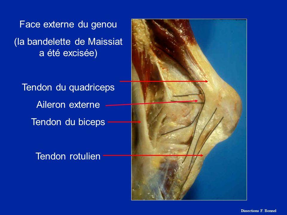 Trochlée fémorale Plica infrapatellaire Ligament adipeux Dissections F. Bonnel