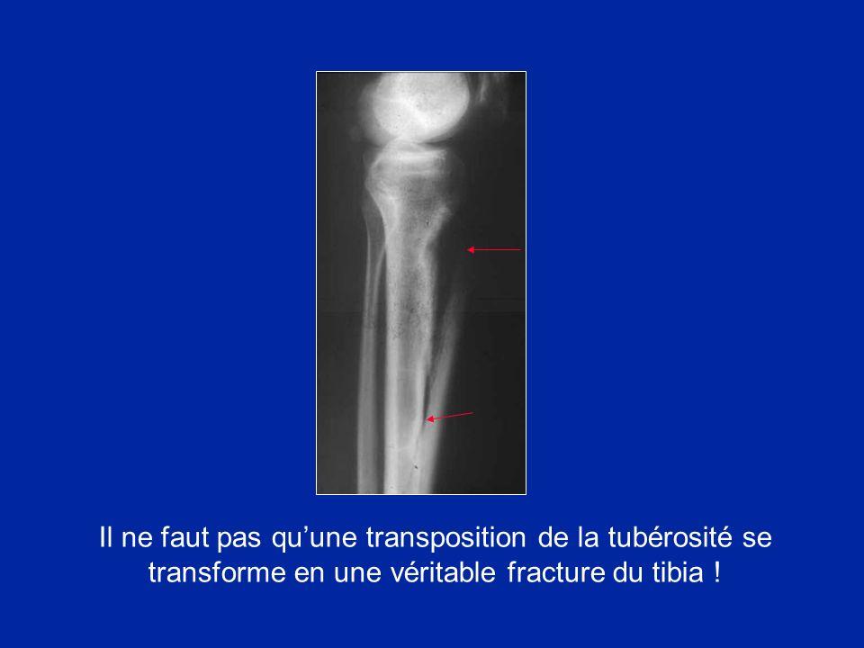 Il ne faut pas quune transposition de la tubérosité se transforme en une véritable fracture du tibia !