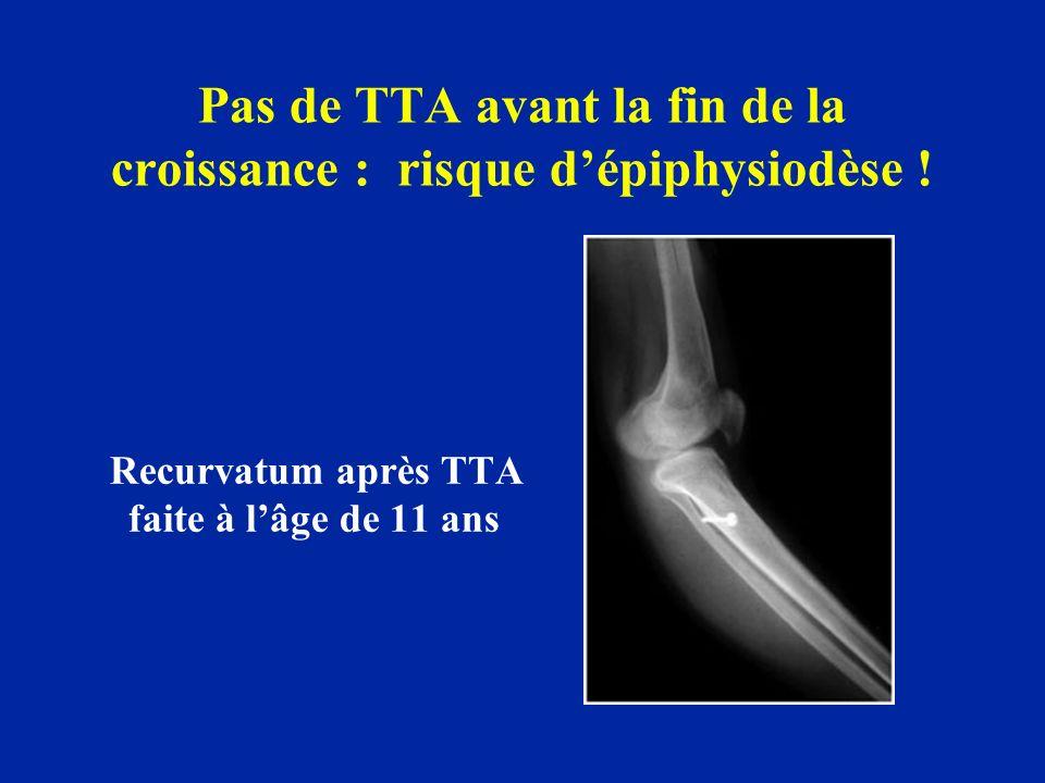 Pas de TTA avant la fin de la croissance : risque dépiphysiodèse ! Recurvatum après TTA faite à lâge de 11 ans