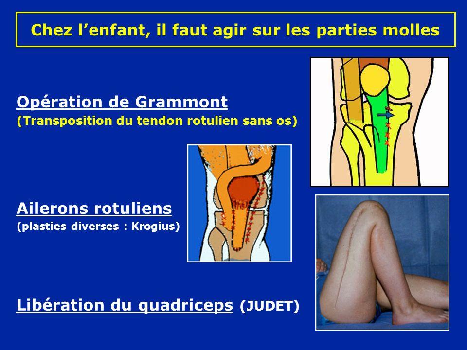 Chez lenfant, il faut agir sur les parties molles Opération de Grammont (Transposition du tendon rotulien sans os) Ailerons rotuliens (plasties diverses : Krogius) Libération du quadriceps (JUDET)