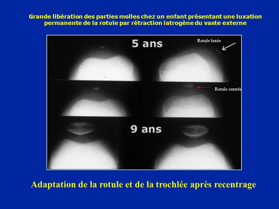 Grande libération des parties molles chez un enfant présentant une luxation permanente de la rotule par rétraction iatrogène du vaste externe Adaptation de la rotule et de la trochlée après recentrage Rotule luxée Rotule centrée