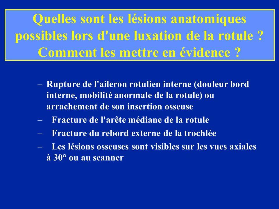 Quelles sont les lésions anatomiques possibles lors d'une luxation de la rotule ? Comment les mettre en évidence ? –Rupture de l'aileron rotulien inte