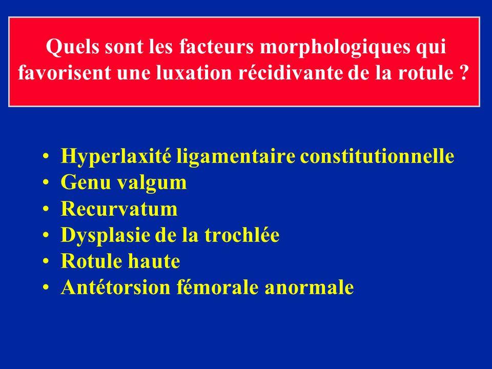 Quels sont les facteurs morphologiques qui favorisent une luxation récidivante de la rotule ? Hyperlaxité ligamentaire constitutionnelle Genu valgum R