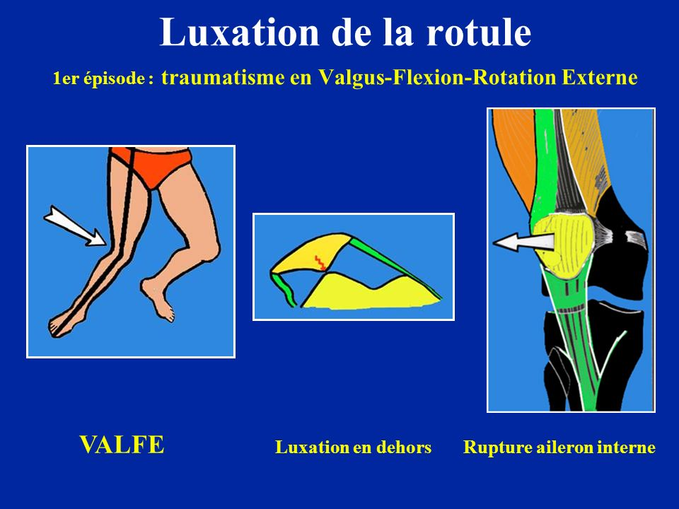 Luxation de la rotule 1er épisode : traumatisme en Valgus-Flexion-Rotation Externe VALFE Luxation en dehors Rupture aileron interne