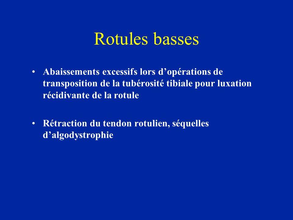 Rotules basses Abaissements excessifs lors dopérations de transposition de la tubérosité tibiale pour luxation récidivante de la rotule Rétraction du tendon rotulien, séquelles dalgodystrophie