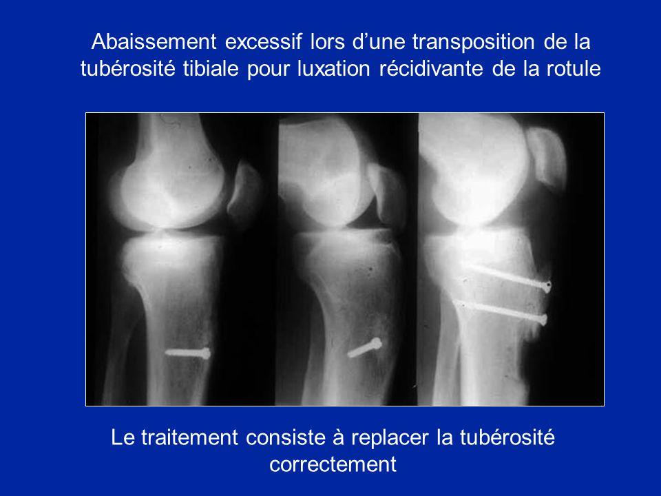 Abaissement excessif lors dune transposition de la tubérosité tibiale pour luxation récidivante de la rotule Le traitement consiste à replacer la tubérosité correctement