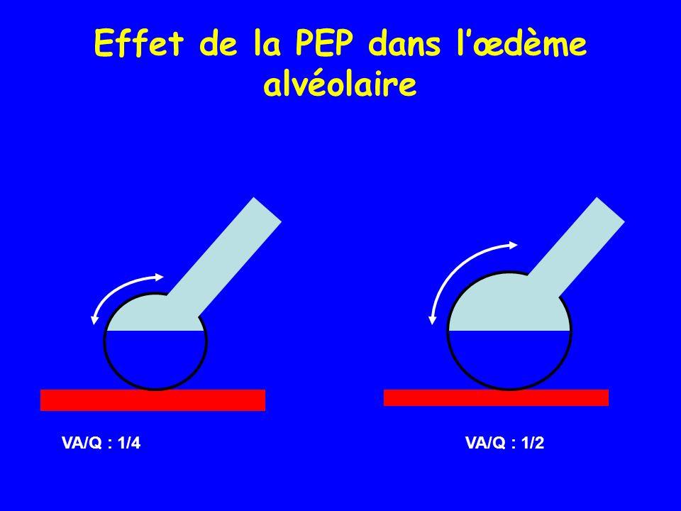 Effet de la PEP dans lœdème alvéolaire VA/Q : 1/4 VA/Q : 1/2
