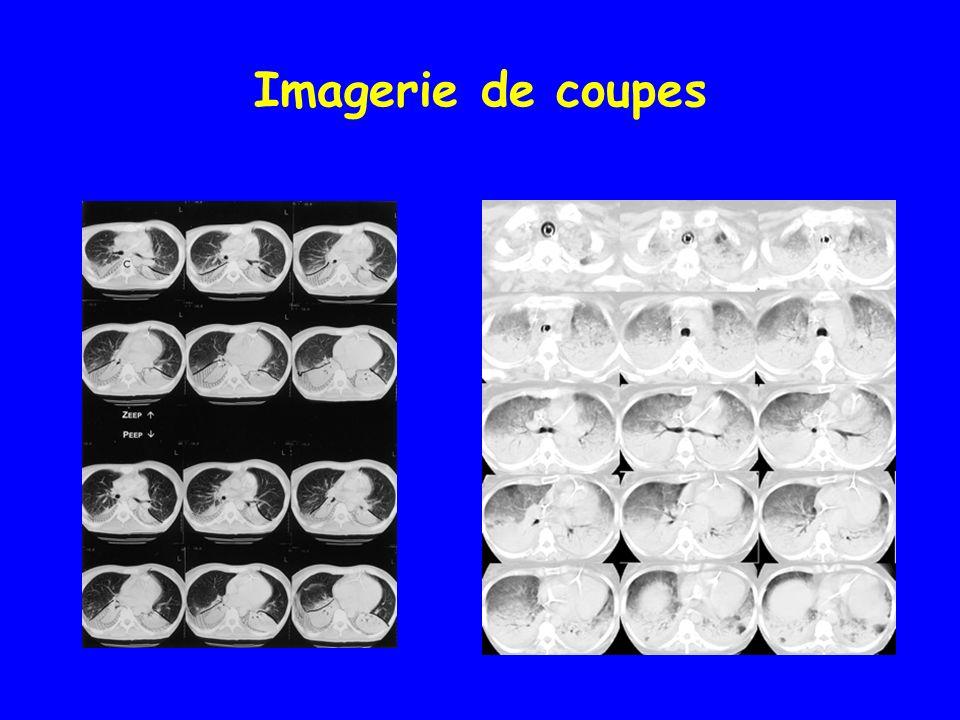 Imagerie de coupes