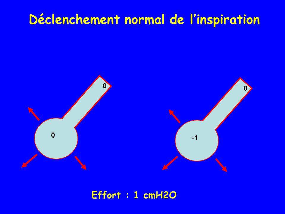 0 0 0 Déclenchement normal de linspiration Effort : 1 cmH2O