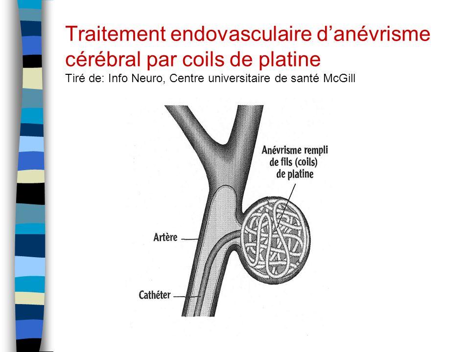Traitement endovasculaire danévrisme cérébral par coils de platine Tiré de: Info Neuro, Centre universitaire de santé McGill